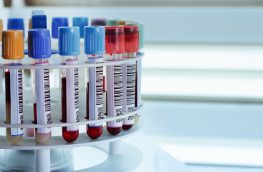ICH M10 Bioanalytical Method Validation Guideline – What the New Draft Means for Bioanalysis